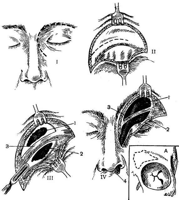 the opening of the frontal sinuses
