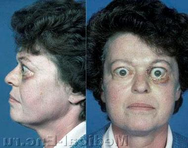 diffuse goiter graves ' disease