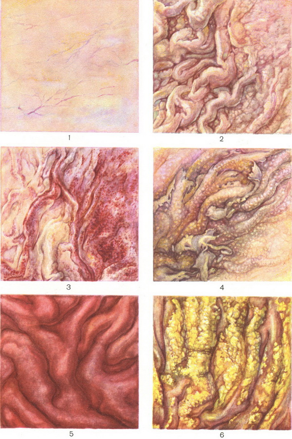 changes in the mucous membrane of the stomach in various forms of gastritis