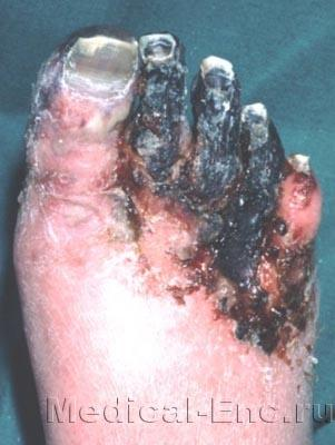 gangrene of the feet photo