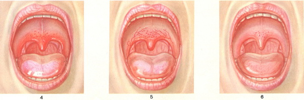 changes in the mucous membrane of the soft palate with flu