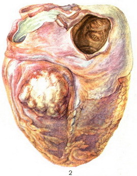 metastasis of cancer in heart
