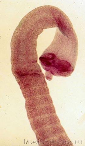 the dwarf tapeworm