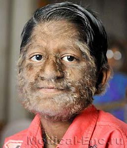 hairy (hypertrichosis)