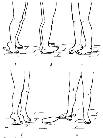 exercises for flat feet in pictures
