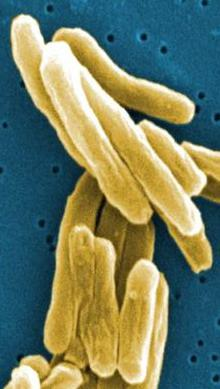 the causative agent of tuberculosis