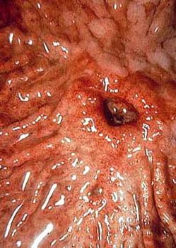 stomach ulcer />Ulcer of the stomach (gastrostomy)<br /></td>